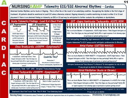 Atrial Rhythms The Abnormal Ones!