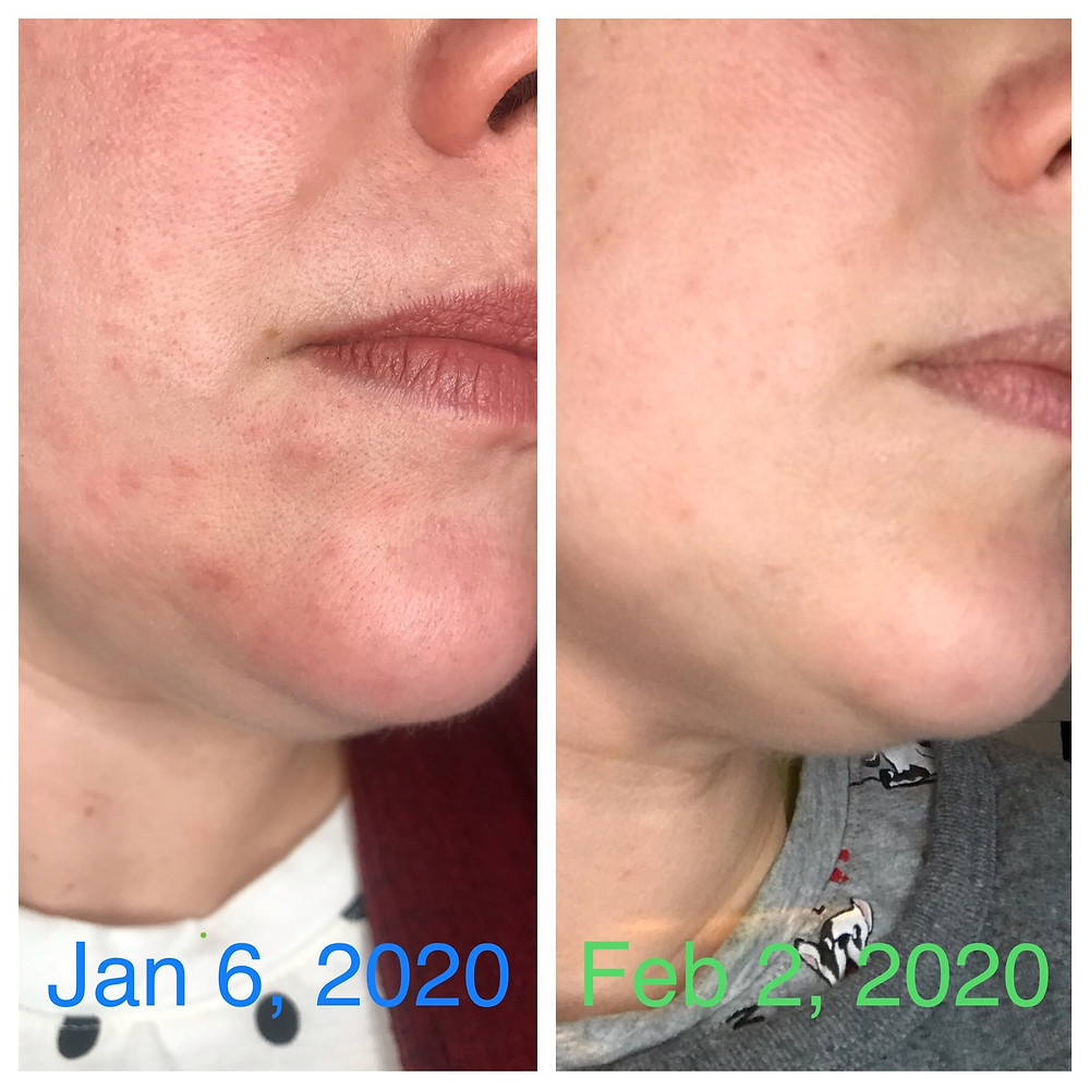 can intermittent fasting get rid of acne