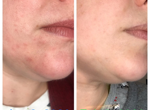 How Kristin Got Rid Of Breakouts and Skin Redness FAST