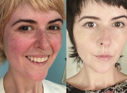 How Andrea Healed Her Rosacea AND De-Bloated While Eating MORE!