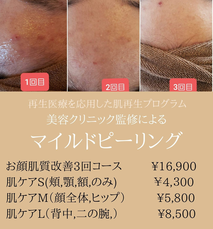 肌再生マイルドピーリング(ニキビ/吹き出物/ヒップ/ビキニライン)
