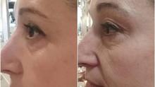 Rejuvenecimiento Facial en Essence by Essence