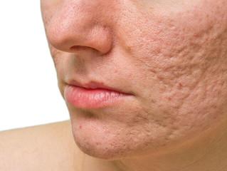 Mejora las marcas de acné con nuestros tratamientos