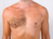 chest wax.jpg