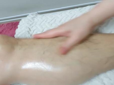 足の浮腫 (むくみ)は「マッサージお願い」のサイン