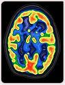 Hypnose et neurosciences