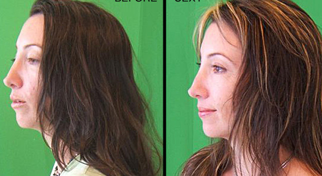 Michael Z Hair before-after-6.jpg