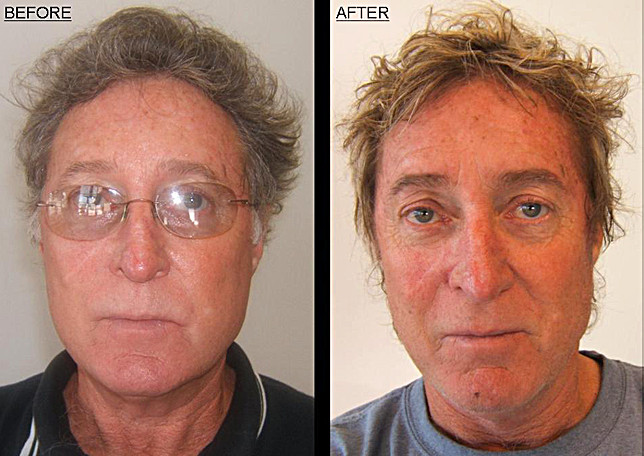 Michael Z Hair before-after-2.jpg