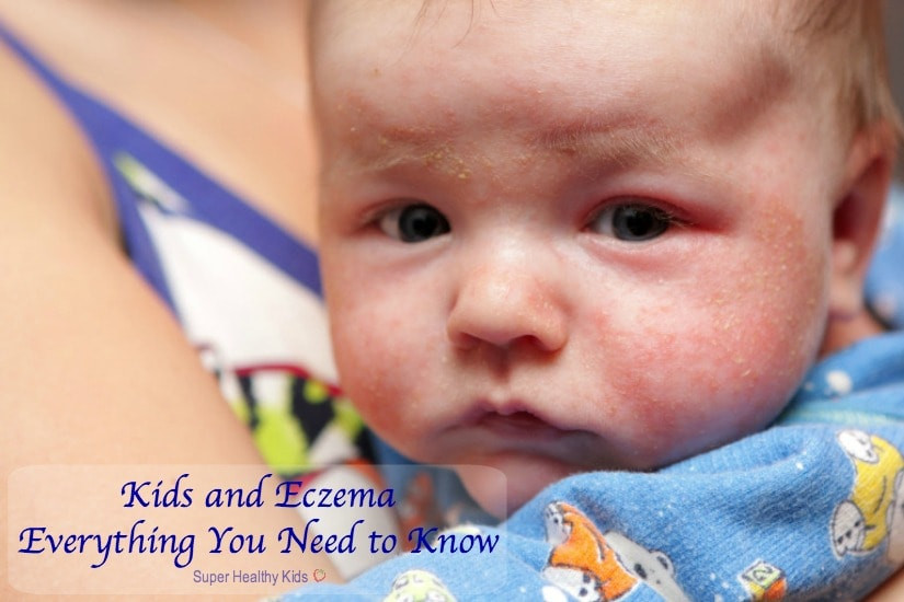kids eczema-everything you need to know