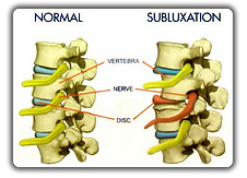 Westcoast Spine Center, Sarasota Chiropractor, Gonstead Chiropractor, Auto Accident back injury, Gonstead Chiropractic Care, Chiropractor Sarasota, sports injury help, low back pain relief