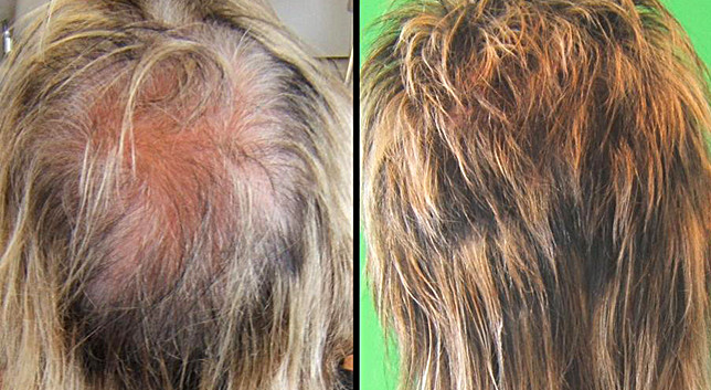 Michael Z Hair before-after-1.jpg