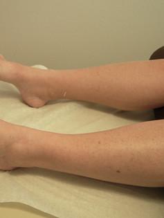 Sarasota Medical Acupuncture