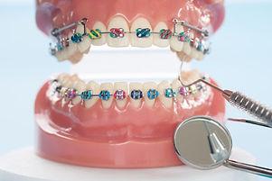 Ortodoncia-en-ancianos.jpg