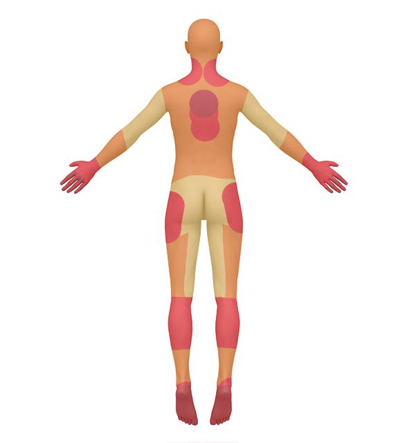 Pain before Physiokey treatments