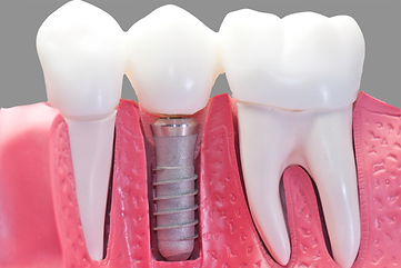 dental implant new zealand.png