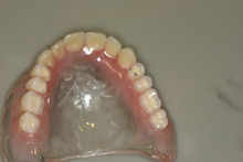 How to take care of dentures in Watford & North London