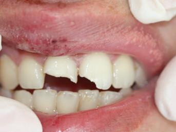 Broken tooth emergency dentist Watford