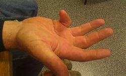 hand wrist surgery trigger finger dupuytrens