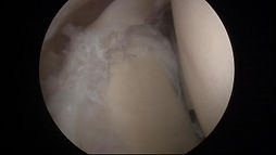 arthroscopic shoulder elbow surgery sub acromial decompression rotator cuff repair