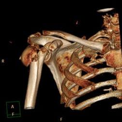 shoulder surgery hemiarthroplasty total shoulder replacement open stabilisation