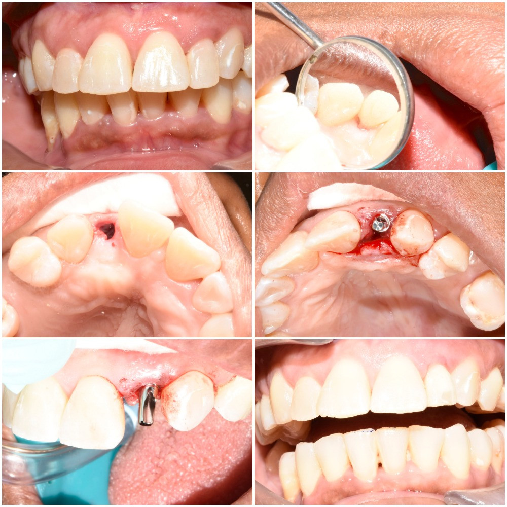 Immediate implant front tooth