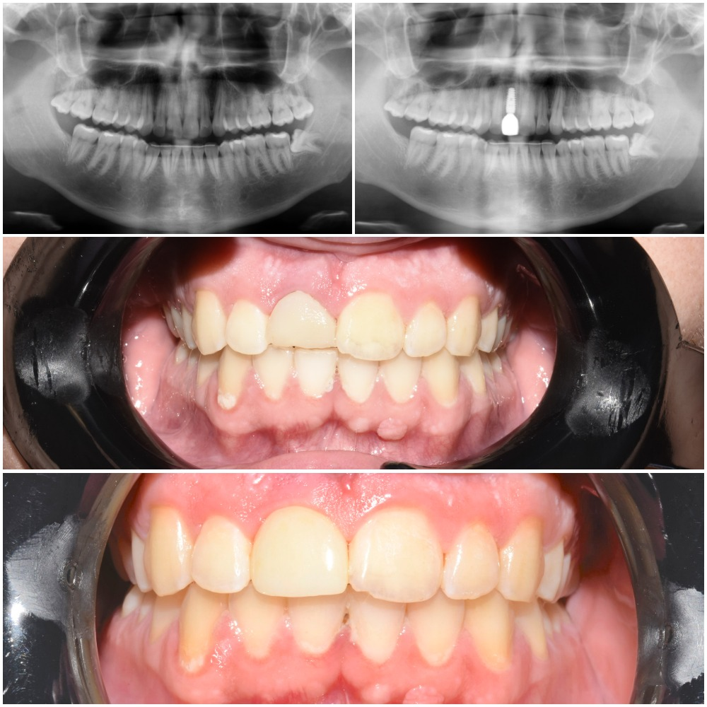Dental implant to replace cracked tooth
