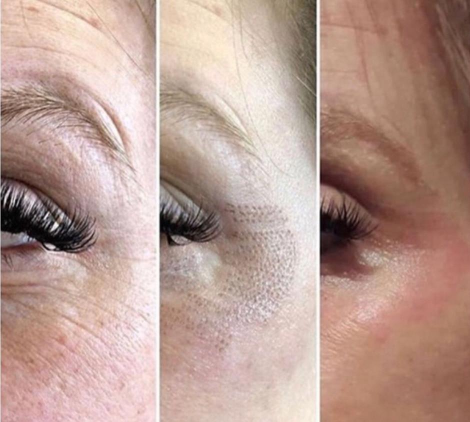 Blast Away Moles & Wrinkles