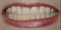 After Dentures & Partial Dentures