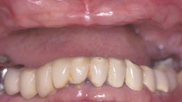 Before Dentures & Partial Dentures