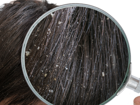 The Difference between dry scalp & dandruff