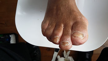 Fungal Nails After