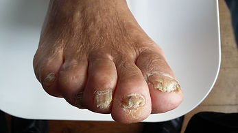Fungal Nails Before