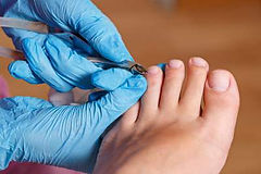 Foot care Nottingham, chiropodists Nottingham