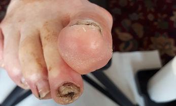 Foot Pic 2 07 2018 (3).jpg