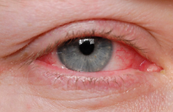 Allergies and Dry Eye Treatment