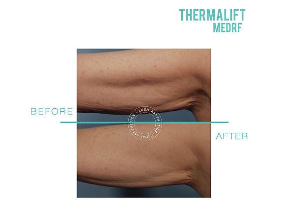 ThemaLIFT MED RF - Fat Blasting & Body Contouring