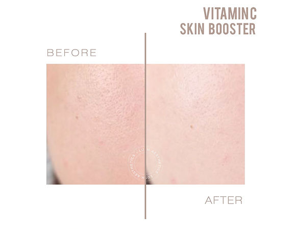 Vitamin C Skin Booster - Brighter Skin