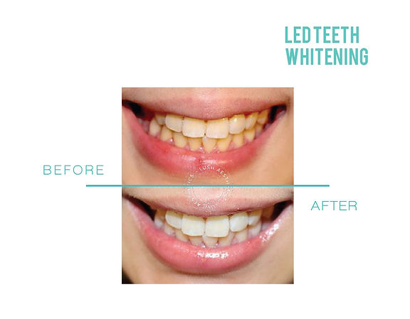 Up to 8 Shades lighter in 1 hour - LED Teeth Whitening