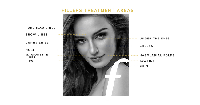 mode medical_fillers treatment areas-03.