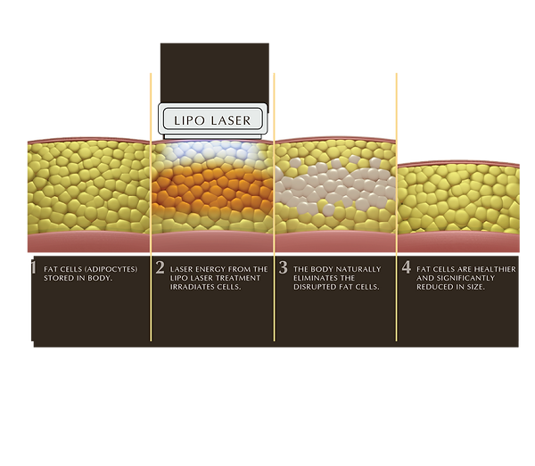 Simply - Lipo Laser.png