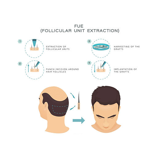 aesthetic doctor, singapore aesthetic clinic, lush medical clinic, singapore hair transplant, hair transplant, hair loss treatment, fue hair transplant, fue hair transplant singapore, fue transplant, fut transplant, fut transplant singapore