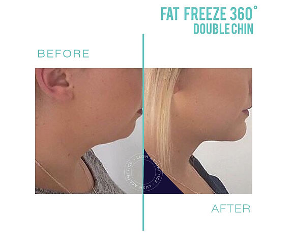 Fat Freeze 360 - Up to 40% Fat Reduction in 1 Session