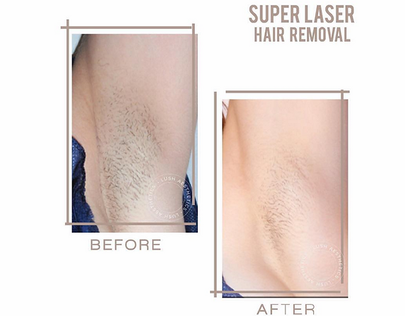 Get rid of unwanted hair for good with the Super Laser Hair Removal Treatment