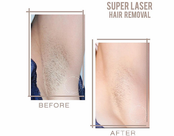 Painlesss Laser Super Hair Removal SHR Permanent Hair Removal