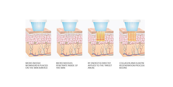 mode aesthetics singapore, lush aesthetics Singapore, top 10 aesthetic clinic Singapore, acne scar treatment singapore, scar treatment, fractional laser, co fractional laser, fractional rf microneedling, infini rf