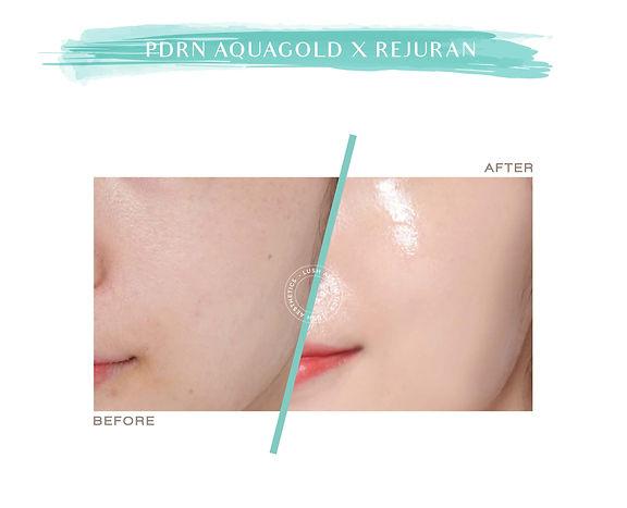 PDRN Aquagold x Rejuran 2