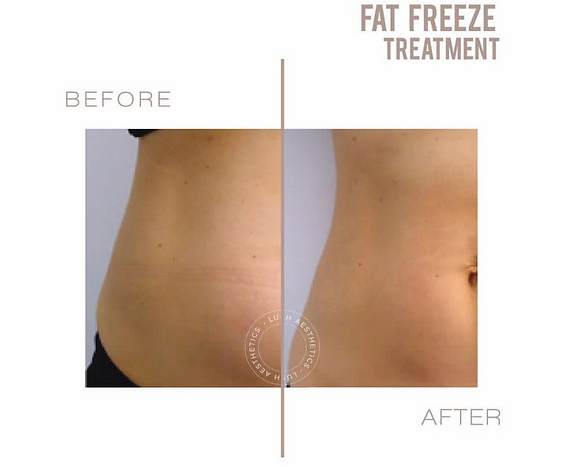 Fat Freeze - Weight Loss