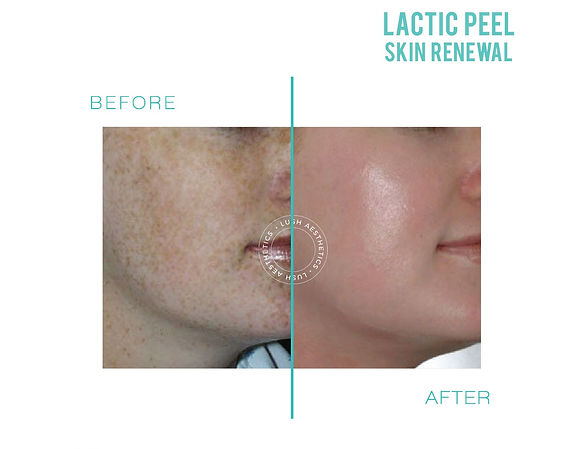 lactic aha chemical peel Skin renewal