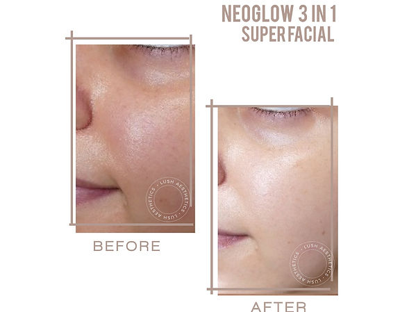 Neoglow 3 in 1 Super Facial