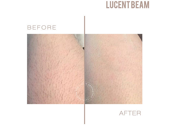 lucent beam led hair removal permanent, shr hair removal, laser hair removal, ipl hair removal, picopulse led hair removal, painless hair removal